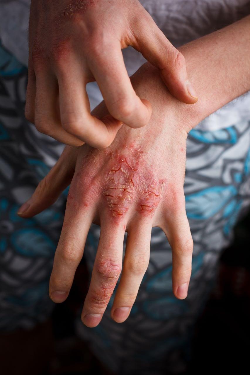 Person scratching hand eczema